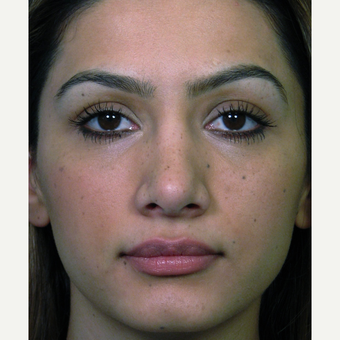 Complex revision open rhinoplasty surgery before 2857700