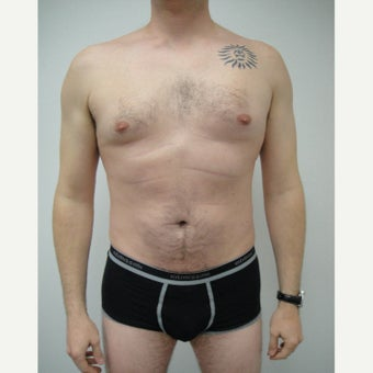 35-44 year old man treated with Liposonix after 1554019