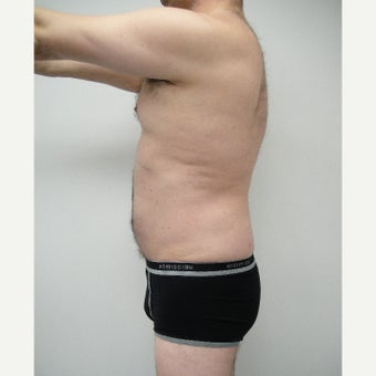 35-44 year old man treated with Liposonix 1554019