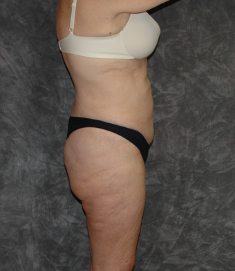 Vaser Liposuction after 925688