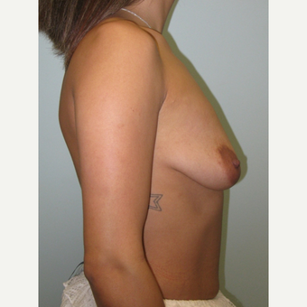 Breast Augmentation with Natrelle Inspira implants on 5'2, 127 pound mother of 2 before 3304150