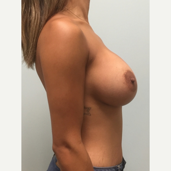 Breast Augmentation with Natrelle Inspira implants on 5'2, 127 pound mother of 2 after 3304150