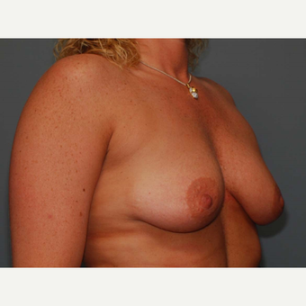 38 y/o Dual Plane Crescent Breast Augmentation before 3065941
