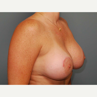 38 y/o Dual Plane Crescent Breast Augmentation after 3065941
