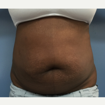35-44 year old woman treated with Tummy Tuck and Flank Liposuction before 2993185