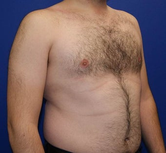 25-34 year old man treated with Laser Liposuction 3483384