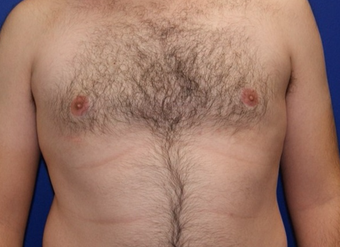 25-34 year old man treated with Laser Liposuction after 3483384