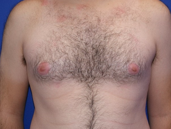 25-34 year old man treated with Laser Liposuction before 3483384