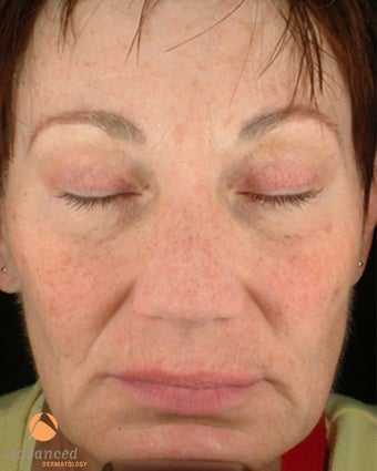 Female treated with 3 Photodynamic Therapy with Levulan for sun damage before 1041643