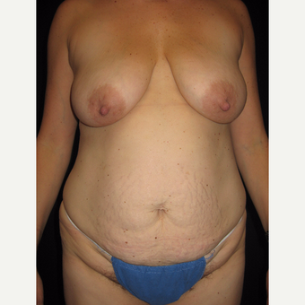 35-44 year old woman treated with Mommy Makeover before 3319615