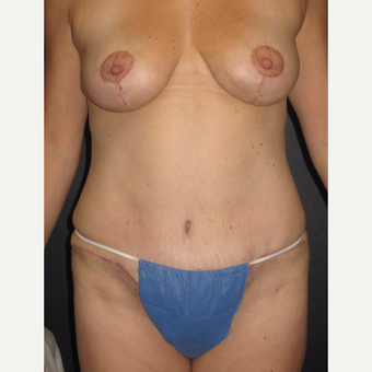 35-44 year old woman treated with Mommy Makeover after 3319615