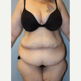 25-34 year old woman treated with Tummy Tuck before 3692279