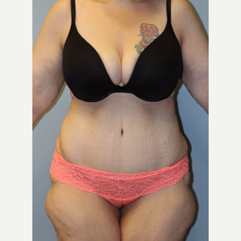 25-34 year old woman treated with Tummy Tuck after 3692279