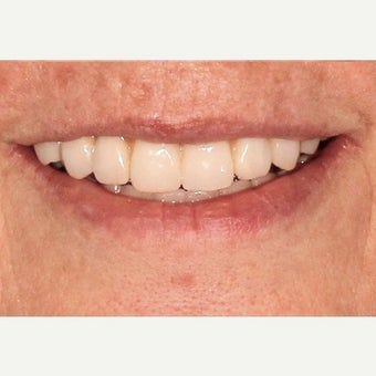 55-64 year old woman treated with All-on-4 Dental Implants after 2636724