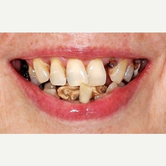 55-64 year old woman treated with All-on-4 Dental Implants before 2636724