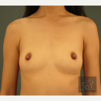 25-34 year old woman treated with Breast Augmentation before 3095159
