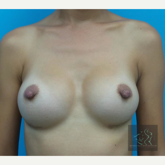 25-34 year old woman treated with Breast Augmentation after 3095159