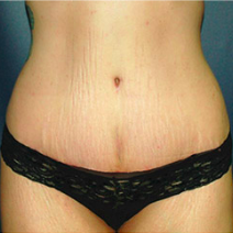 35 year old woman treated with Tummy Tuck after 3578251