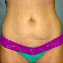 35 year old woman treated with Tummy Tuck before 3578251