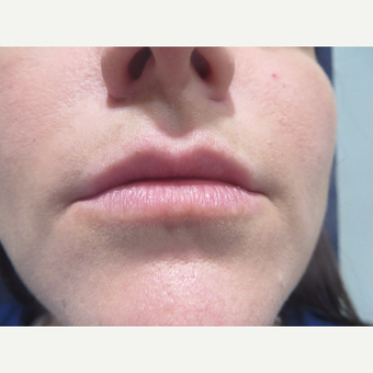 25-34 year old woman treated with Restylane Silk before 3076772