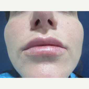 25-34 year old woman treated with Restylane Silk after 3076772