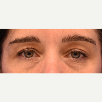 34 year Old Woman Under Eye Circles Treated with  Restylane before 3444137