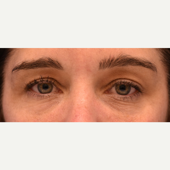 34 year Old Woman Under Eye Circles Treated with  Restylane after 3444137