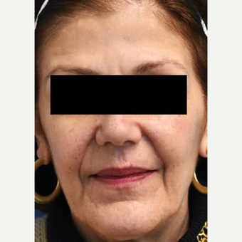 55-64 year old woman treated with Fractional Laser before 3036805