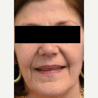 55-64 year old woman treated with Fractional Laser after 3036805