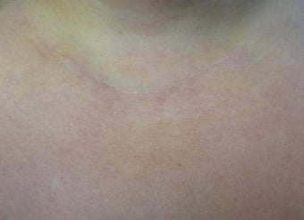 Scar Revision Procedure for Thyroid Keloid Scar on the Neck and Chest after 723190