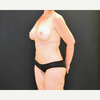 34 year old who lost over 100 pounds underwent CLASS tummy tuck and breast lift and augmentation after 3743266