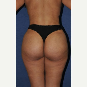 45-54 year old woman treated with Brazilian Butt Lift after 2248046
