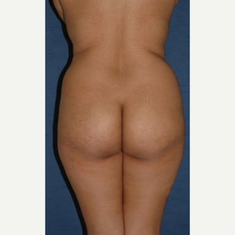 45-54 year old woman treated with Brazilian Butt Lift before 2248046