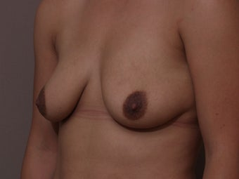"30 year old female, 5'2"", 130 lbs., desires cosmetic improvement of breasts 1253851"