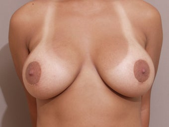 "30 year old female, 5'2"", 130 lbs., desires cosmetic improvement of breasts after 1253851"