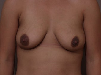 "30 year old female, 5'2"", 130 lbs., desires cosmetic improvement of breasts before 1253851"