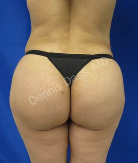 Brazilian Butt Lift after 834566