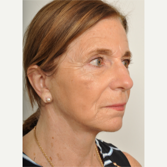 65-74 year old woman treated with Facelift after 3622403