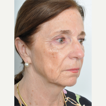 65-74 year old woman treated with Facelift before 3622403