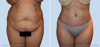 tummy tuck before 530117