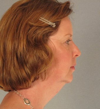 Facelift and Neck Lift