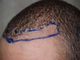 FUE procedure, before and after 700 grafts before 1111704