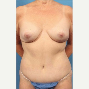 55-64 year old woman treated with Breast Implant Removal after 1863323