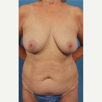 55-64 year old woman treated with Breast Implant Removal before 1863323