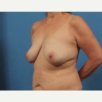 55-64 year old woman treated with Breast Implant Removal 1863323