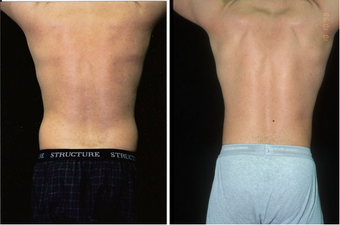 31-year-old man treated with Liposuction. after 574558