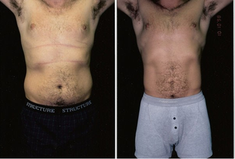 31-year-old man treated with Liposuction. before 574558