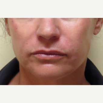 45-54 year old woman treated with Juvederm Ultra Plus in nasolabial folds after 3210808