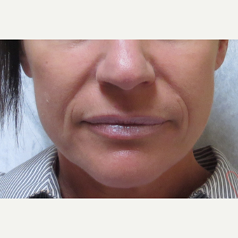 45-54 year old woman treated with Juvederm Ultra Plus in nasolabial folds before 3210808