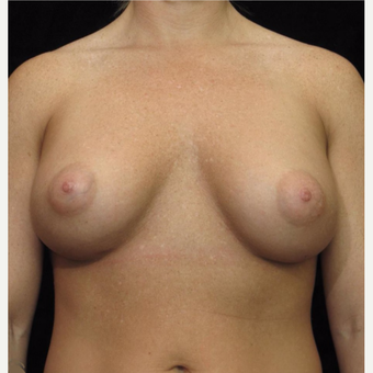 25-34 year old woman treated with Breast Augmentation after 3093720